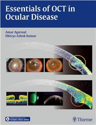 Cover Essentials of OCT in Ocular Disease
