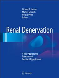 Cover Renal Denervation