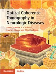 Cover Optical Coherence Tomography in Neurologic Diseases