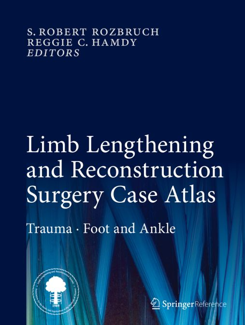 Limb Lengthening and Reconstruction Surgery Case Atlas / Print + eReference
