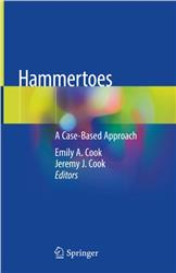 Cover Hammertoes
