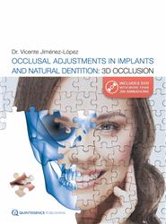 Cover Occlusal Adjustments in Implants and Natural Dentition: 3D Occlusion