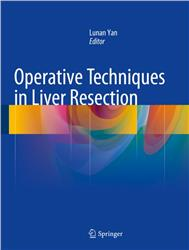 Cover Operative Techniques in Liver Resection