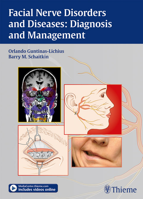 Facial Nerve Disorders and Diseases