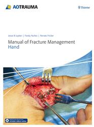 Cover AO Trauma Manual of Fracture Management - Hand
