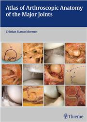Cover Atlas of Arthroscopic Anatomy of the Major Joints