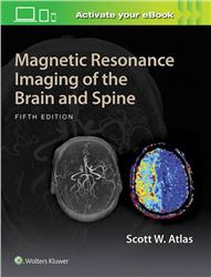 Cover Magnetic Resonance Imaging of the Brain and Spine