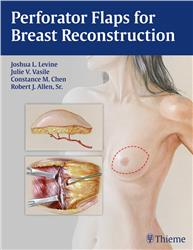 Cover Perforator Flaps for Breast Reconstruction