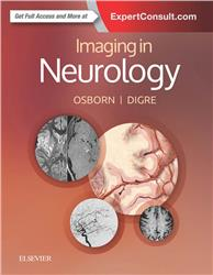 Cover Imaging in Neurology