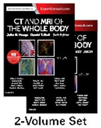 Cover CT and MRI of the Whole Body. 2 Volumes