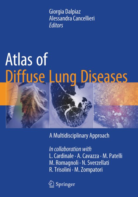 Atlas of Diffuse Lung Diseases