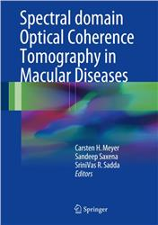 Cover Spectral domain Optical Coherence Tomography in Macular Diseases