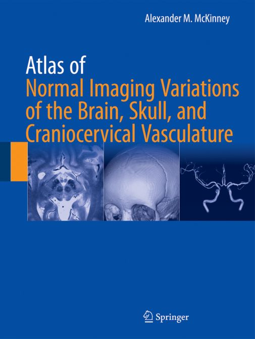 Atlas of Normal Imaging Variations of the Brain, Skull, and Craniocervical Vasculature - 2 Volumes -