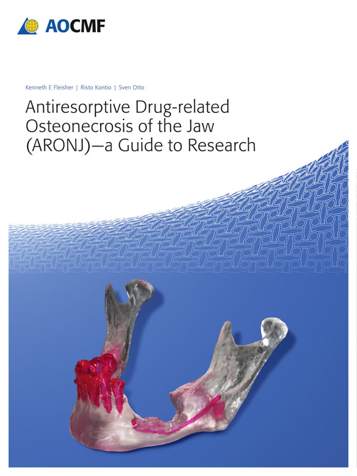 Antiresorptive Drug-Related Osteonecrosis of the Jaw (ARONJ) - A Guide to Research