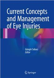Cover Current Concepts and Management of Eye Injuries