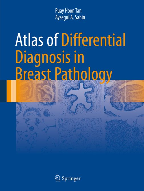 Atlas of Differential Diagnosis in Breast Pathology