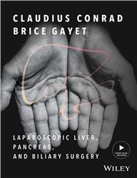 Cover Laparoscopic Liver, Pancreas, and Biliary Surgery