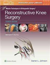 Cover Master Techniques in Orthopaedic Surgery: Reconstructive Knee Surgery