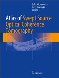 Cover Atlas of Swept-Source Optical Coherence Tomography