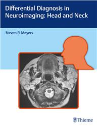 Cover Differential Diagnosis in Neuroimaging: Head and Neck