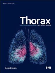 Cover Thorax
