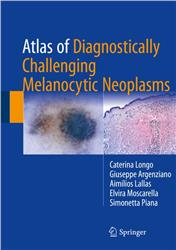Cover Atlas of Diagnostically Challenging Melanocytic Neoplasms