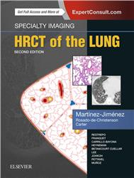 Cover Specialty Imaging: HRCT of the Lung