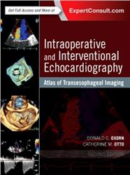 Cover Atlas of Intraoperative Transesophageal Echocardiography