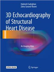 Cover 3D Echocardiography of Structural Heart Disease