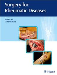 Cover Surgery for Rheumatic Diseases