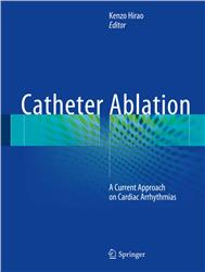 Cover Catheter Ablation