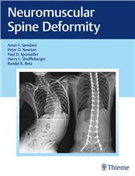 Cover Neuromuscular Spine Deformity