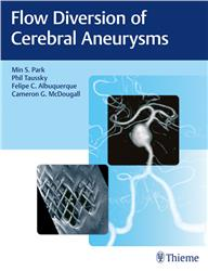 Cover Flow Diversion of Cerebral Aneurysms