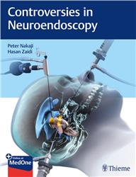 Cover Controversies in Neuroendoscopy