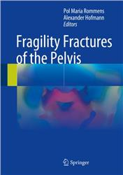 Cover Fragility Fractures of the Pelvis