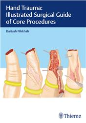 Cover Hand Trauma: Illustrated Surgical Guide of Core Procedures