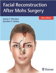 Cover Facial Reconstruction after Mohs Surgery