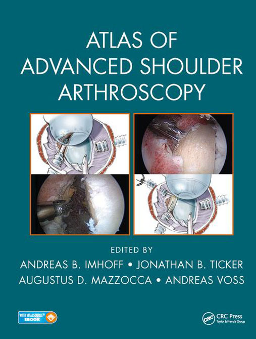 Atlas of Advanced Shoulder Arthroscopy