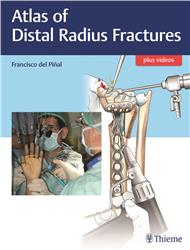 Cover Atlas of Distal Radius Fractures