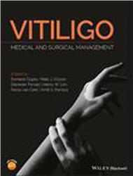 Cover Vitiligo: Medical and Surgical Managmement