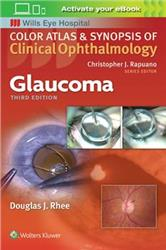 Cover Glaucoma