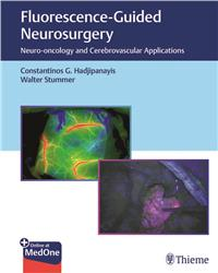 Cover Fluorescence-Guided Neurosurgery
