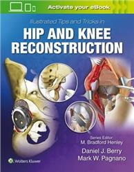 Cover Illustrated Tips and Tricks in Hip and Knee Reconstructive and Replacement Surgery
