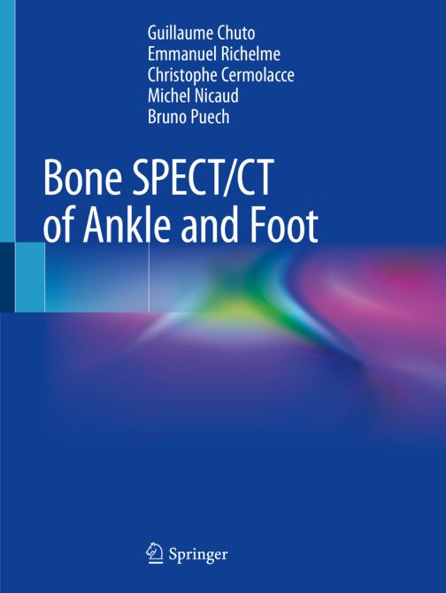 Bone SPECT/CT of Ankle and Foot