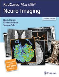 Cover Radcases Neuro Imaging