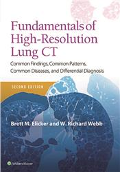 Cover Fundamentals of High-Resolution Lung CT