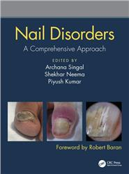 Cover Nail Disorders: A Comprehensive Approach
