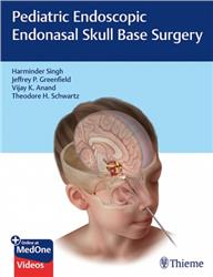Cover Pediatric Endoscopic Endonasal Skull Base Surgery