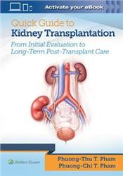 Cover Easy Guide to Kidney Transplantation