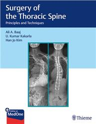 Cover Surgery of the Thoracic Spine: Principles and Techniques